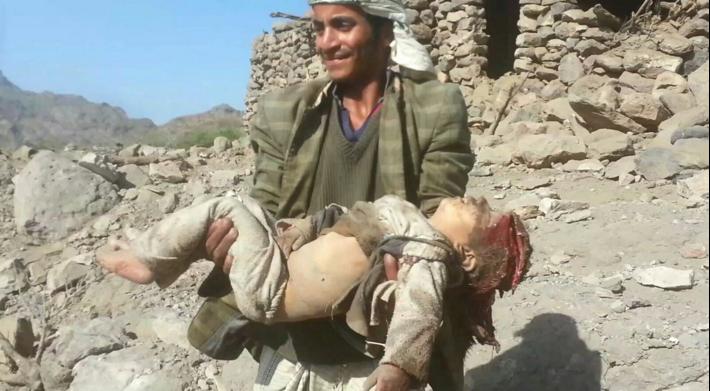 Jemen 6
