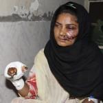 Grausam – Ehrenmorde und Säureattacken in Pakistan