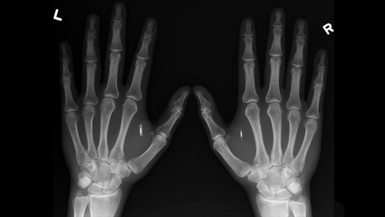 Viele Menschen haben nun Chips in dem fleischigen Teil zwischen Daumen und Zeigefinger implantiert. (Amal Graafstra / Dangerous Things)
