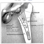 Nicht nur künstliche Intelligenz sondern auch intelligente Implantate – Hüftgelenke mit Microchips – Signale aus der Hüfte!