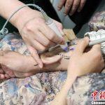 Chinesische Chirurgen transplantieren nachgewachsene Ohrmuschel vom Arm an den Kopf - Chinese surgeons transplant regenerated ear from arm to head