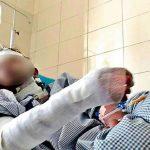 Säureattacken - Gerade einmal 15 Jahre alt: Weil sie ihn nicht heiraten wollte, goss er Säure auf ihr Gesicht!