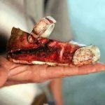 Human trafficking! Schockierend, wie jung die Opfer von Menschenhandel sind - es sind Kinder, die gekauft und verkauft werden!